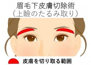 眉毛下皮膚切除 図